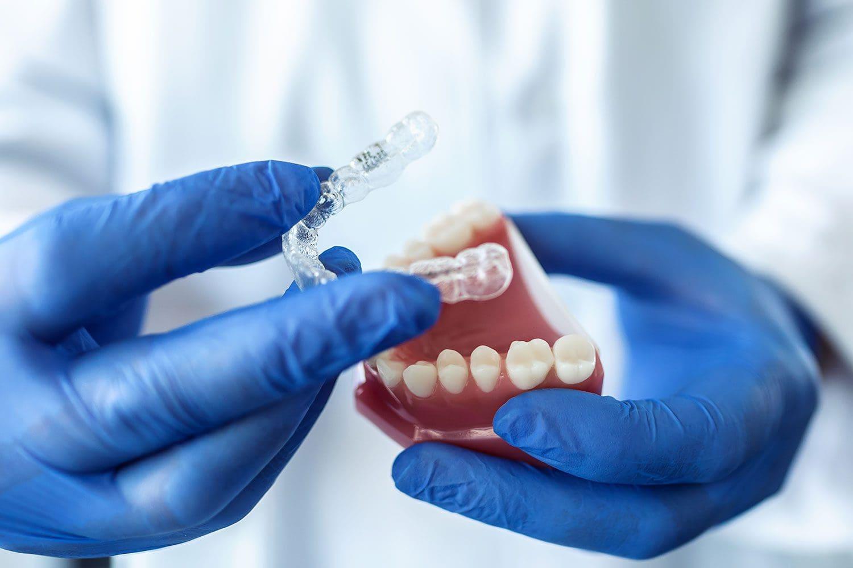 Invisalign - Dental Milano