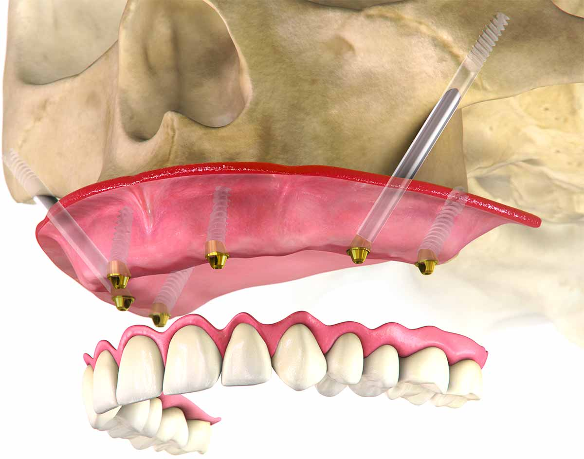 Impianti zigomatici - Dental Milano
