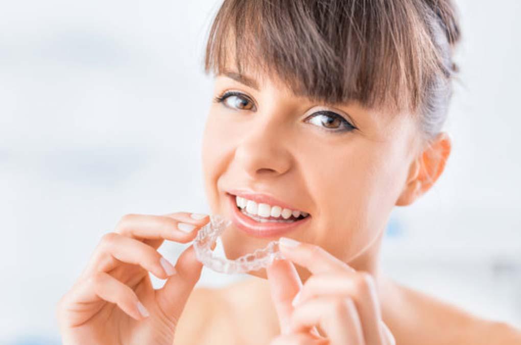ortodonzia invisibile - Dental Milano