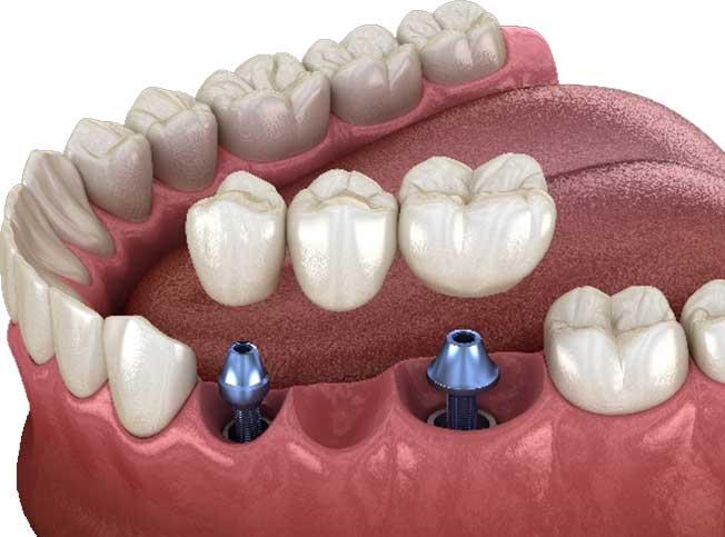 implantologia dentale - Dental Milano