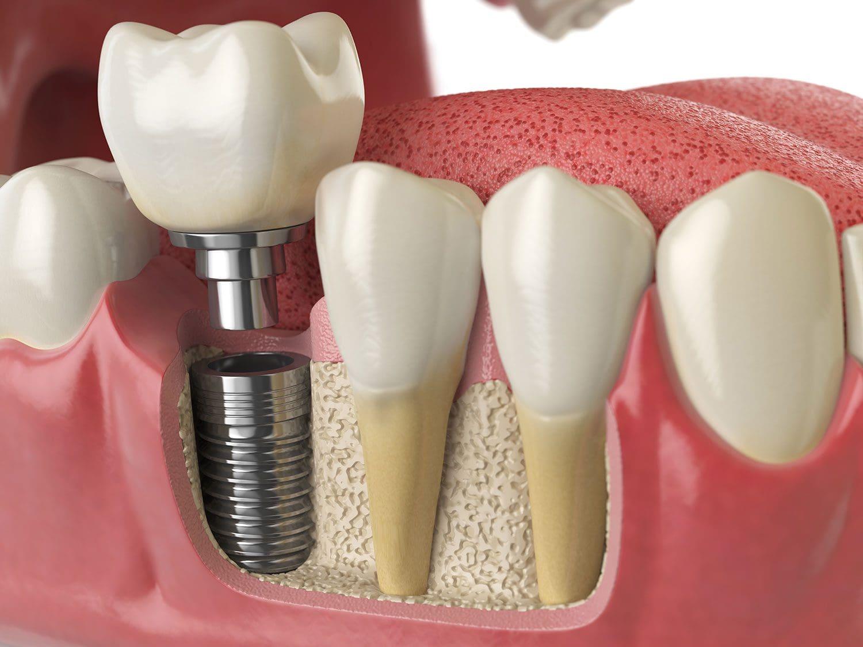 impianti dentali - Dental Milano
