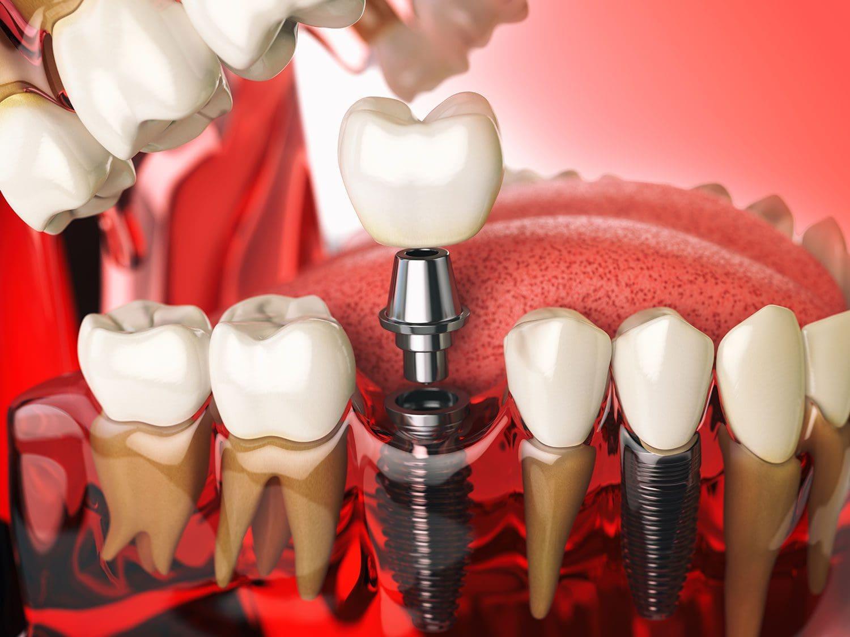 impianto dentale in titanio - Dental Milano