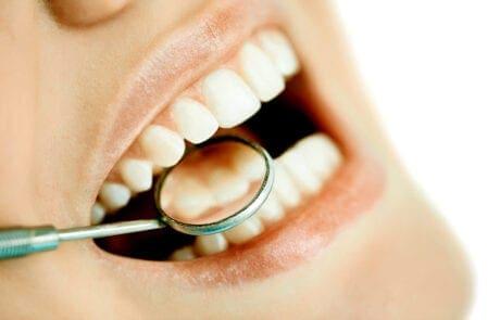 Sbiancamento dentale professionale dentista cinisello balsamo