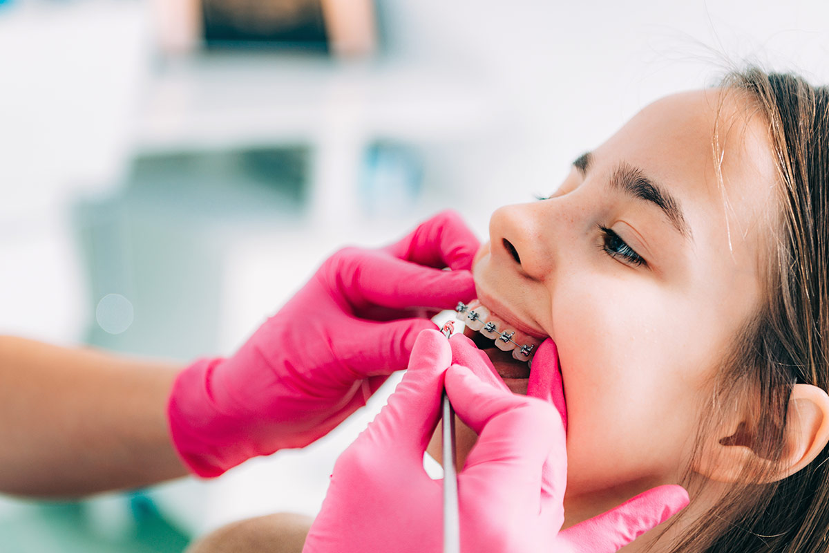Affollamento Dentale - Dentista Cinisello Balsamo