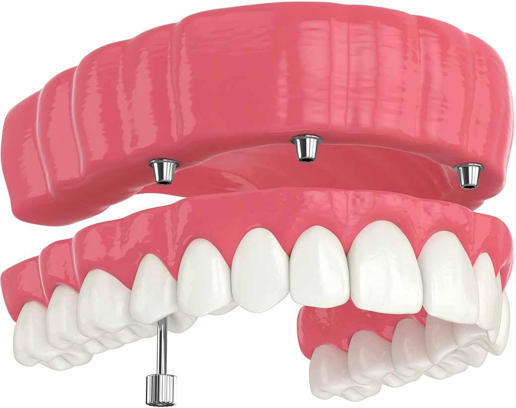 implantologia a carico immediato - Dental Milano