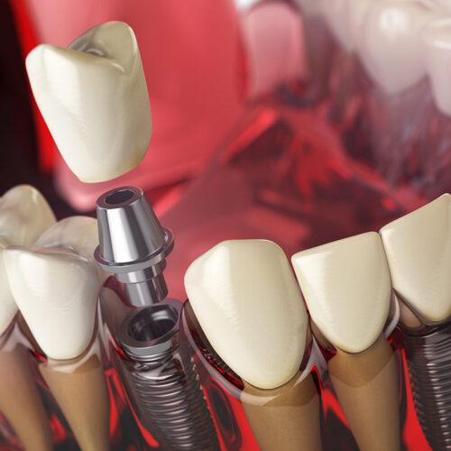 impianto dentale in titanio dental milano cinisello balsamo