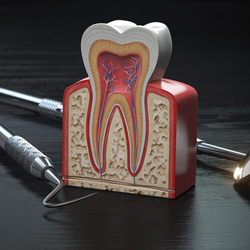 rigenerazione gengivale dental milano dentista cinisello balsamo
