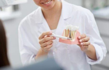 rigenerazione ossea dentale