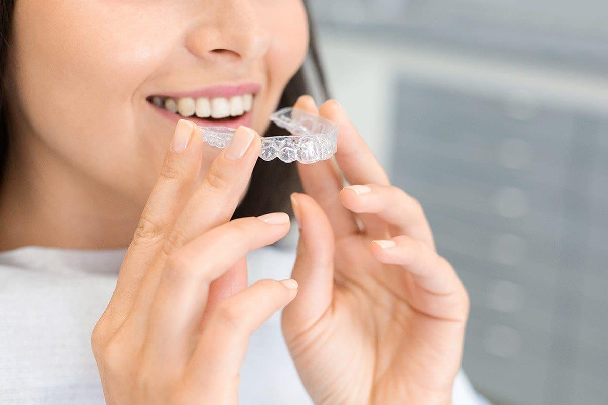 Apparecchio dentale e i tipi di trattamento