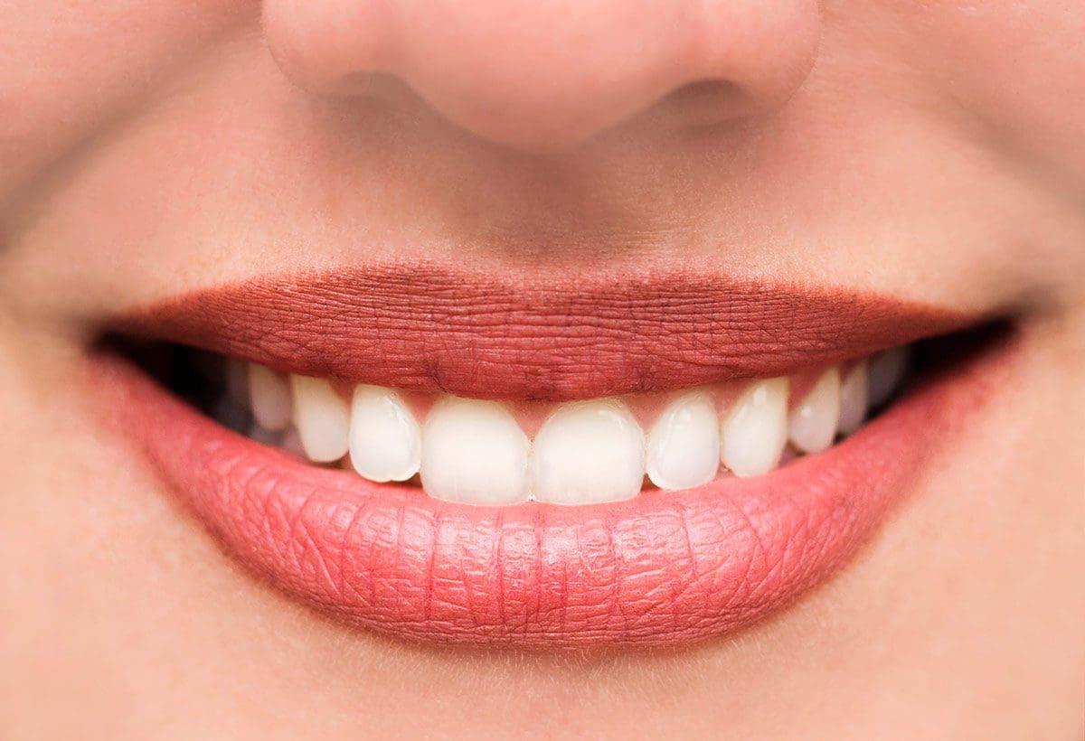 implantologia denti fissi in un giorno