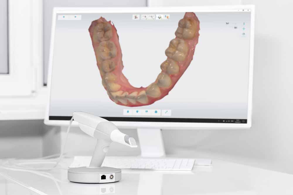 scanner intraorale