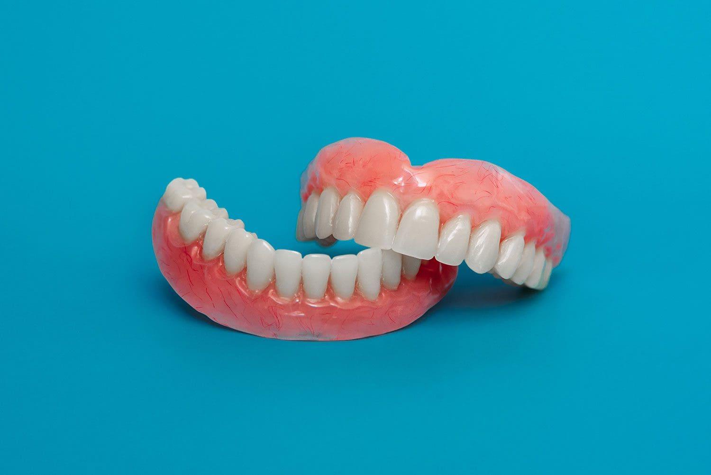Protesi dentali mobili rimovibili - Dental Milano
